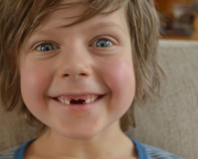 Por qué se caen lo dientes de leche
